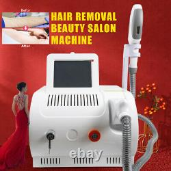 3in1 IPL Elight SHR OPT Laser Permanent Hair Removal RF Skin Care Salon Machine