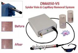 Avance Spider & vericose vein removal system for legs, face, nose, machine. +