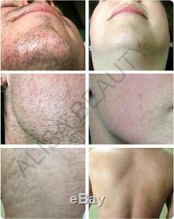 DEESS laser Hair Removal System IPL Hair Removal device 350,000 Light Pulses FDA