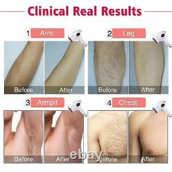 Laser Hair Removal 500,000 Flashes Permanent Hair Removal & Upgrade Ice Compress